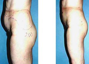 liposuctie buik zonder operatie