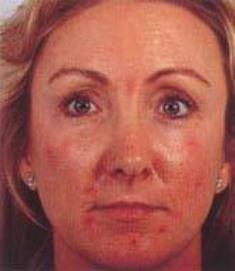 acne leeftijd
